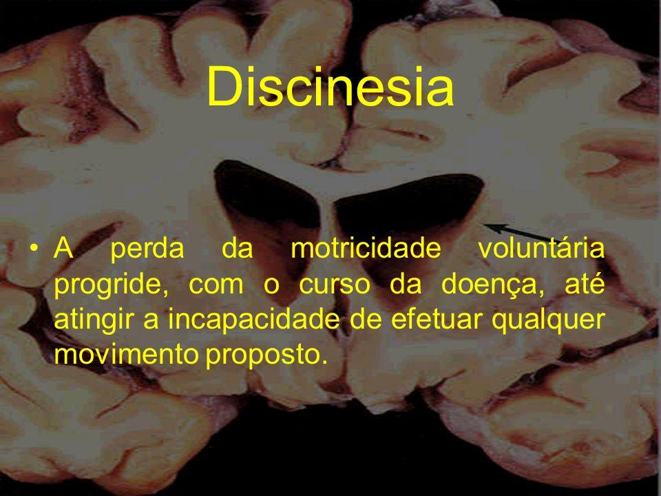 Discinesia A perda da motricidade voluntária progride, com o curso da doença, até atingir a incapacidade de efetuar qualquer movimento proposto.
