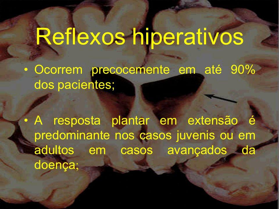 Reflexos hiperativos Ocorrem precocemente em até 90% dos pacientes; A resposta plantar em extensão é predominante nos casos juvenis ou em adultos em c