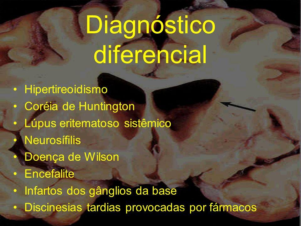 Diagnóstico diferencial Hipertireoidismo Coréia de Huntington Lúpus eritematoso sistêmico Neurosífilis Doença de Wilson Encefalite Infartos dos gângli