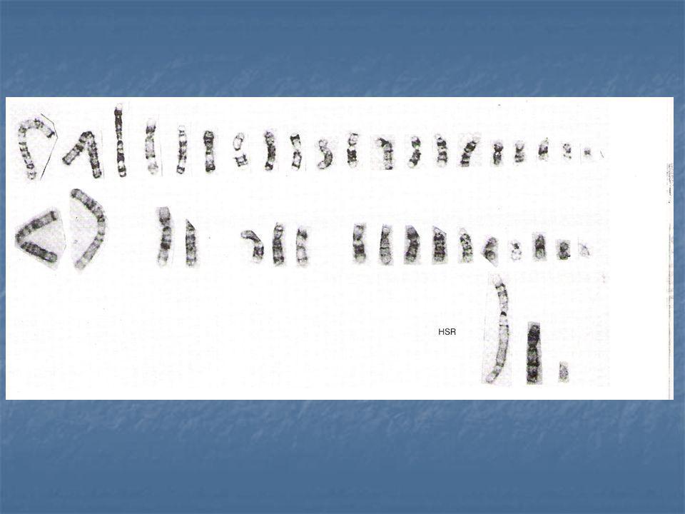 Alterações cromossomais em células cancerosas refletindo amplificação gênica proto-oncogene myc amplificado e detectado por FISH HSM DM