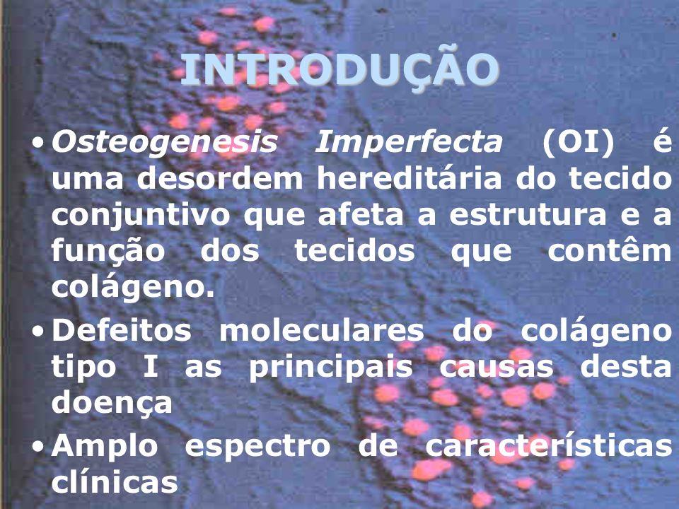 INTRODUÇÃO Osteogenesis Imperfecta (OI) é uma desordem hereditária do tecido conjuntivo que afeta a estrutura e a função dos tecidos que contêm colágeno.