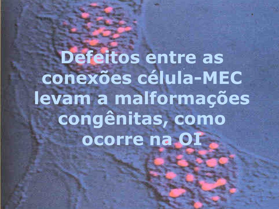 Defeitos entre as conexões célula-MEC levam a malformações congênitas, como ocorre na OI