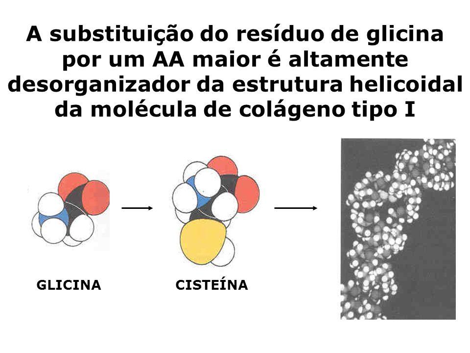 A substituição do resíduo de glicina por um AA maior é altamente desorganizador da estrutura helicoidal da molécula de colágeno tipo I GLICINACISTEÍNA