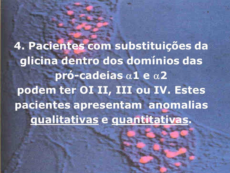 4. Pacientes com substituições da glicina dentro dos domínios das pró-cadeias 1 e 2 podem ter OI II, III ou IV. Estes pacientes apresentam anomalias q