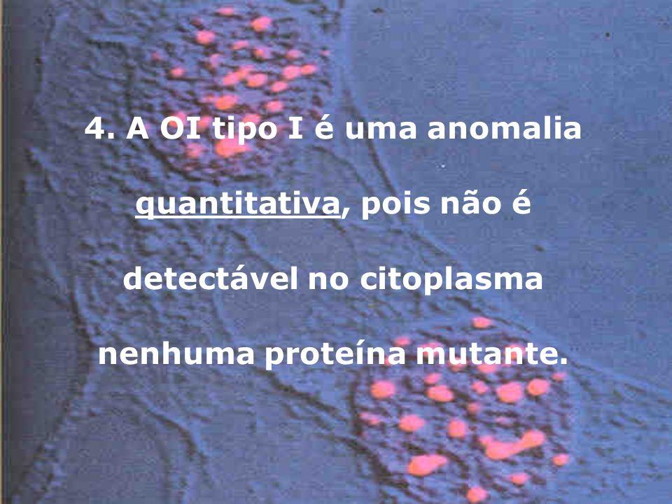 4. A OI tipo I é uma anomalia quantitativa, pois não é detectável no citoplasma nenhuma proteína mutante.