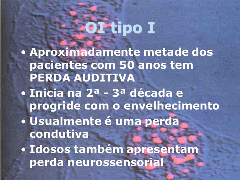 OI tipo I Aproximadamente metade dos pacientes com 50 anos tem PERDA AUDITIVA Inicia na 2ª - 3ª década e progride com o envelhecimento Usualmente é uma perda condutiva Idosos também apresentam perda neurossensorial