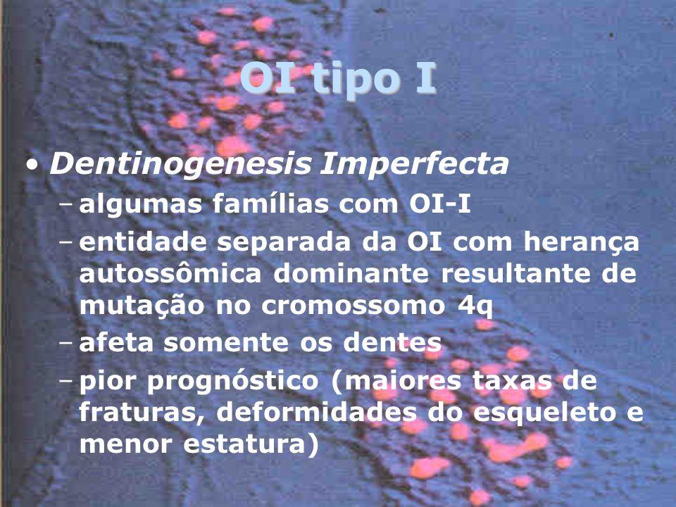 OI tipo I Dentinogenesis Imperfecta –algumas famílias com OI-I –entidade separada da OI com herança autossômica dominante resultante de mutação no cromossomo 4q –afeta somente os dentes –pior prognóstico (maiores taxas de fraturas, deformidades do esqueleto e menor estatura)