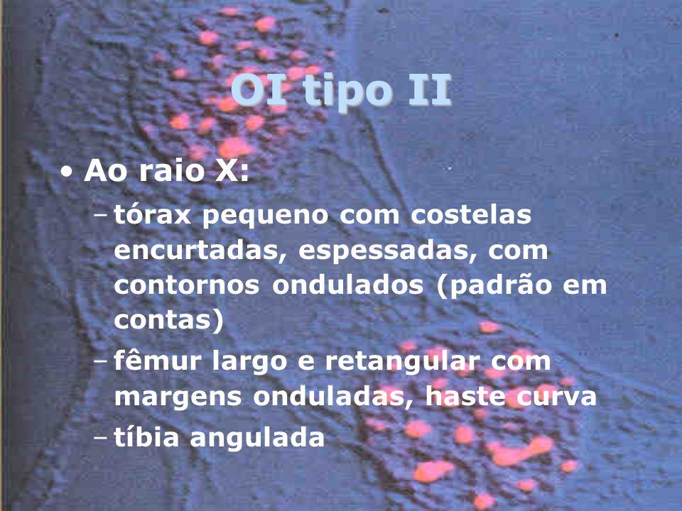 OI tipo II Ao raio X: –tórax pequeno com costelas encurtadas, espessadas, com contornos ondulados (padrão em contas) –fêmur largo e retangular com margens onduladas, haste curva –tíbia angulada