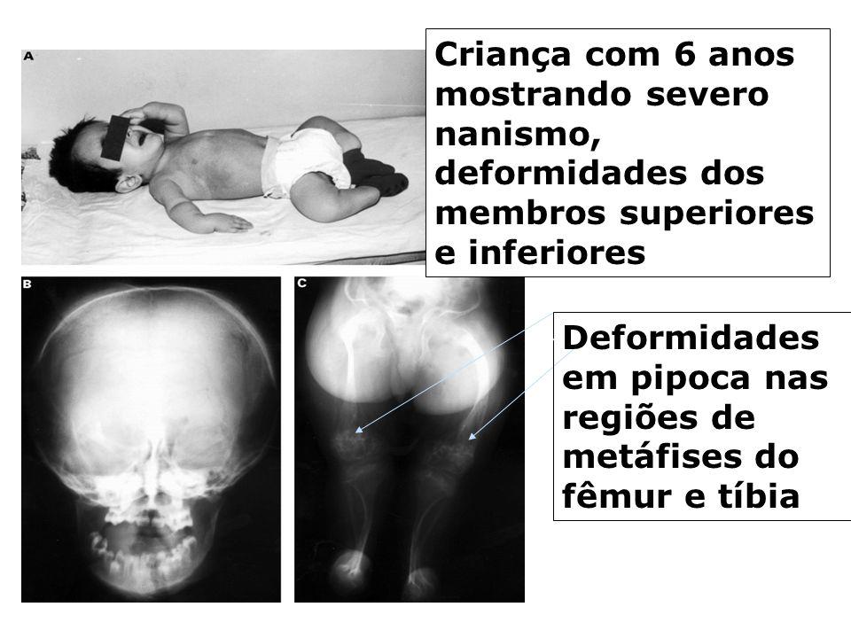 Criança com 6 anos mostrando severo nanismo, deformidades dos membros superiores e inferiores Deformidades em pipoca nas regiões de metáfises do fêmur e tíbia