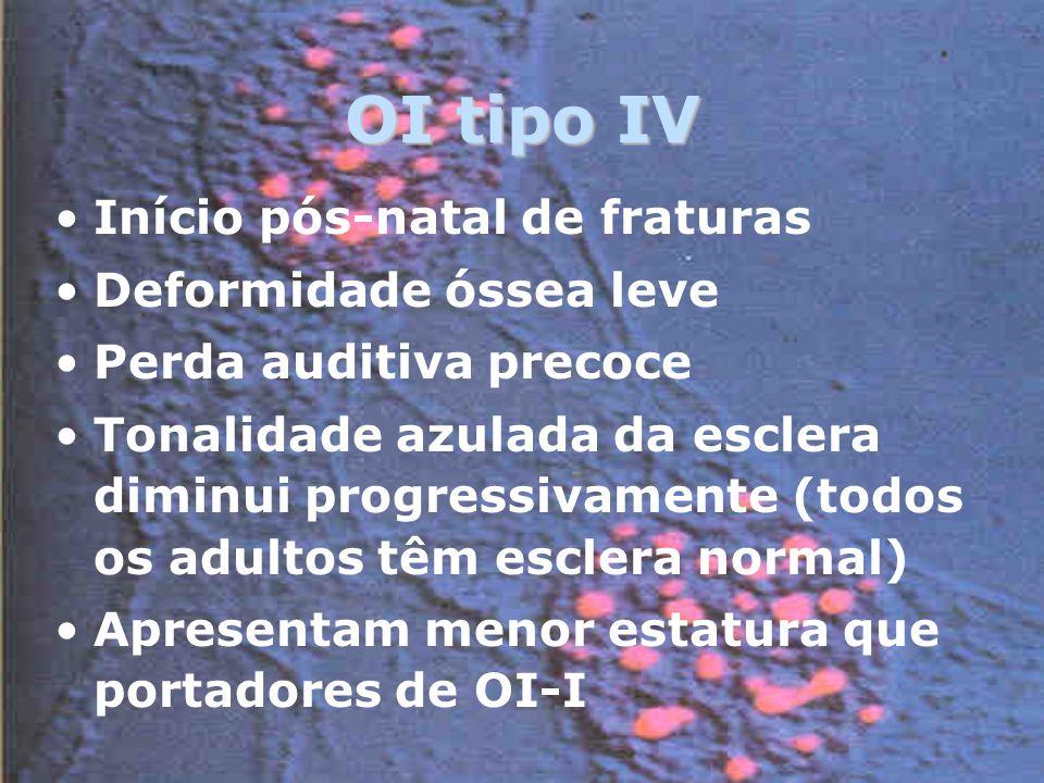 OI tipo IV Início pós-natal de fraturas Deformidade óssea leve Perda auditiva precoce Tonalidade azulada da esclera diminui progressivamente (todos os adultos têm esclera normal) Apresentam menor estatura que portadores de OI-I