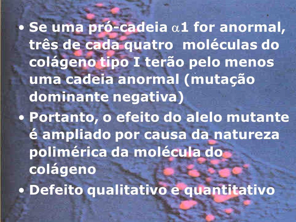 Se uma pró-cadeia 1 for anormal, três de cada quatro moléculas do colágeno tipo I terão pelo menos uma cadeia anormal (mutação dominante negativa) Portanto, o efeito do alelo mutante é ampliado por causa da natureza polimérica da molécula do colágeno Defeito qualitativo e quantitativo