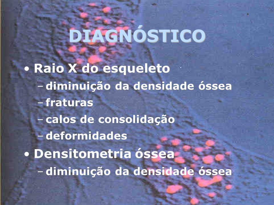 DIAGNÓSTICO Raio X do esqueleto –diminuição da densidade óssea –fraturas –calos de consolidação –deformidades Densitometria óssea –diminuição da densidade óssea