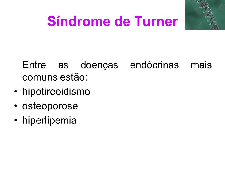 Síndrome de Turner Entre as doenças endócrinas mais comuns estão: hipotireoidismo osteoporose hiperlipemia