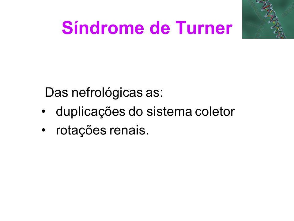 Síndrome de Turner Das nefrológicas as: duplicações do sistema coletor rotações renais.