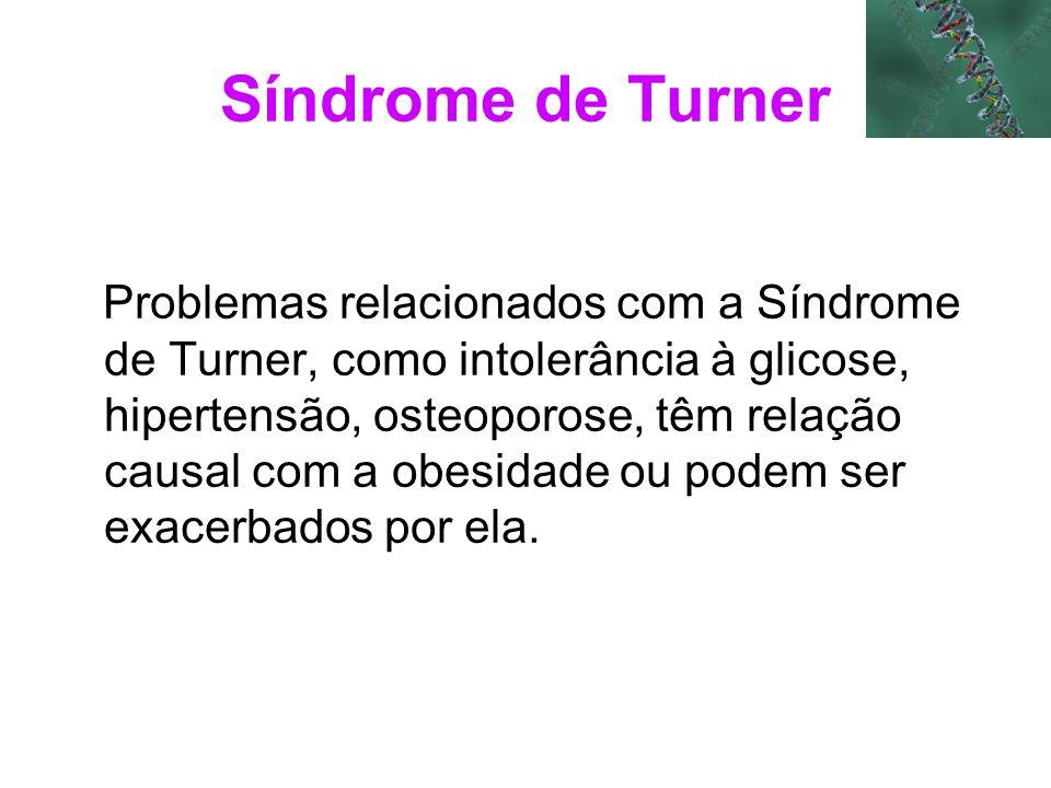Síndrome de Turner Problemas relacionados com a Síndrome de Turner, como intolerância à glicose, hipertensão, osteoporose, têm relação causal com a ob