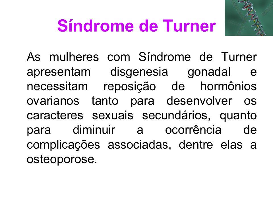 Síndrome de Turner As mulheres com Síndrome de Turner apresentam disgenesia gonadal e necessitam reposição de hormônios ovarianos tanto para desenvolv
