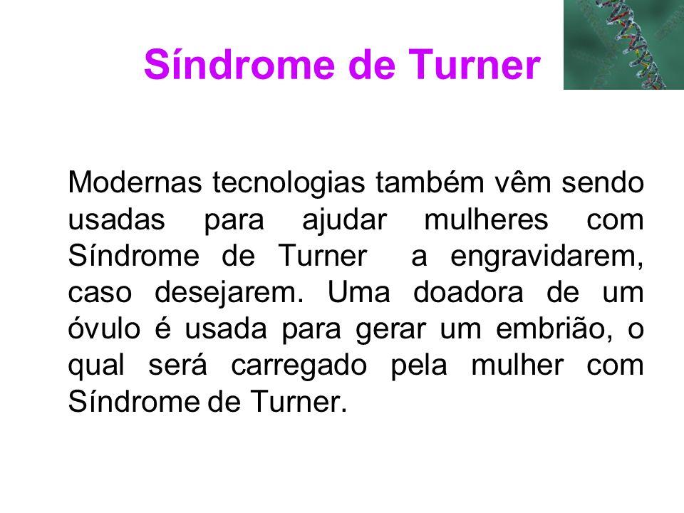 Síndrome de Turner Modernas tecnologias também vêm sendo usadas para ajudar mulheres com Síndrome de Turner a engravidarem, caso desejarem. Uma doador