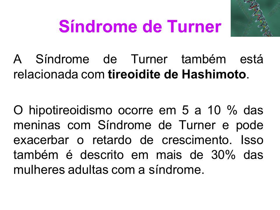Síndrome de Turner A Síndrome de Turner também está relacionada com tireoidite de Hashimoto. O hipotireoidismo ocorre em 5 a 10 % das meninas com Sínd
