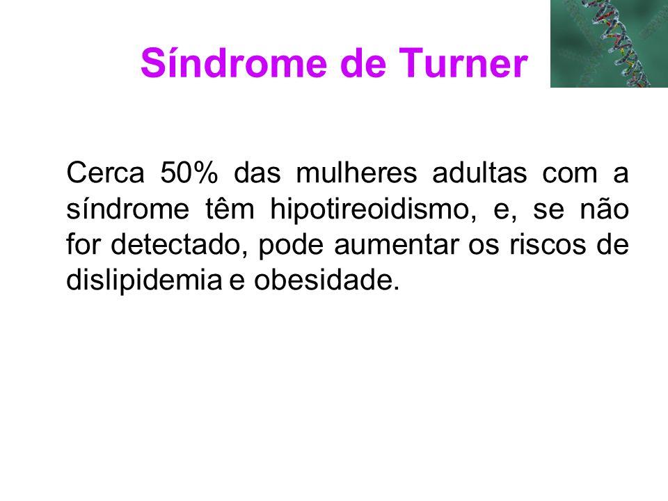 Síndrome de Turner Cerca 50% das mulheres adultas com a síndrome têm hipotireoidismo, e, se não for detectado, pode aumentar os riscos de dislipidemia
