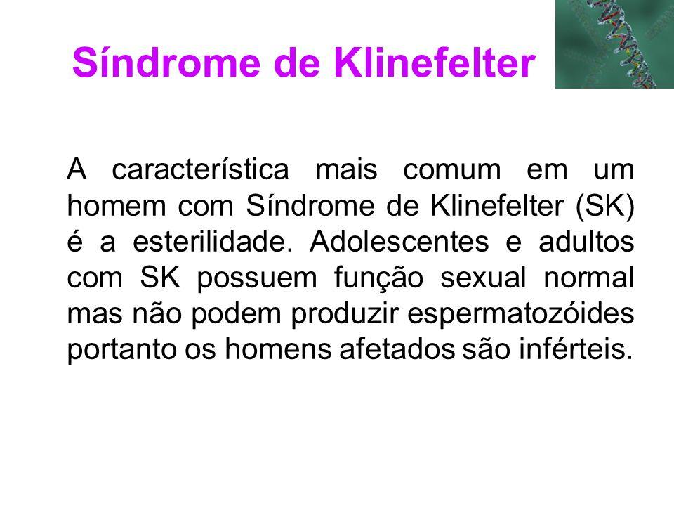 Síndrome de Klinefelter A característica mais comum em um homem com Síndrome de Klinefelter (SK) é a esterilidade. Adolescentes e adultos com SK possu