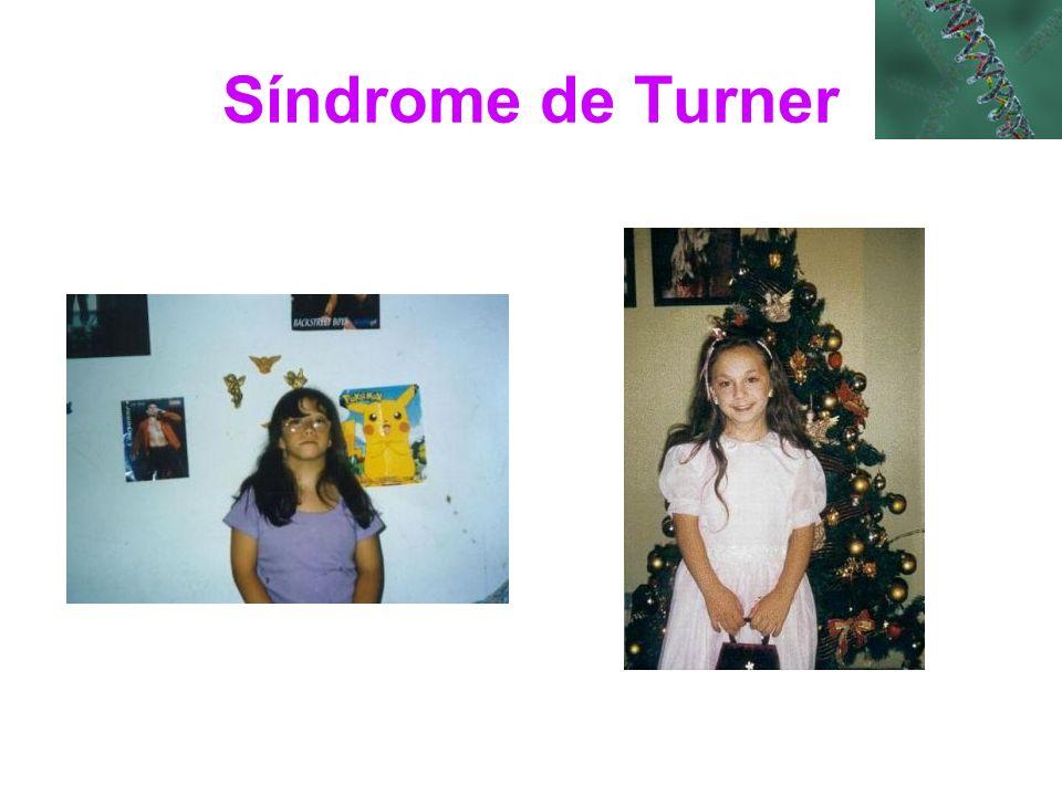 Síndrome de Turner Mulheres com síndrome de Turner podem ter sobrepeso ou obesidade, provavelmente mais relacionado com a ingestão de calorias em excesso em relação à demanda, do que com uma desordem no metabolismo.