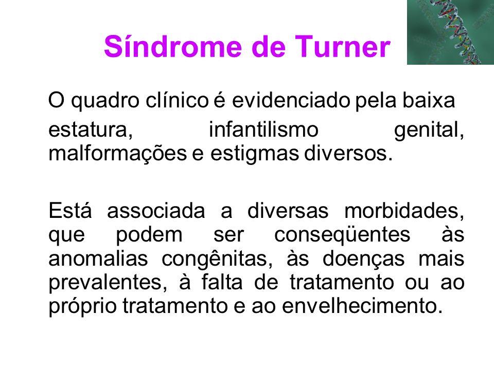 Síndrome de Turner O quadro clínico é evidenciado pela baixa estatura, infantilismo genital, malformações e estigmas diversos. Está associada a divers