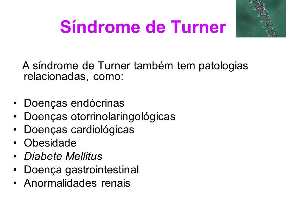 Síndrome de Turner A síndrome de Turner também tem patologias relacionadas, como: Doenças endócrinas Doenças otorrinolaringológicas Doenças cardiológi