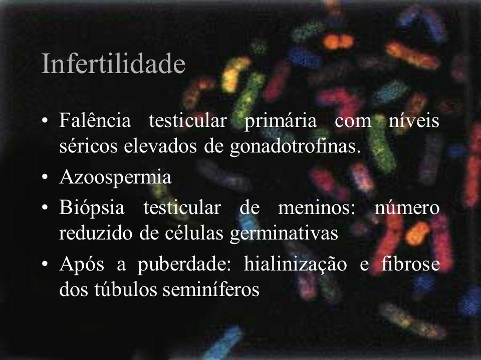 Infertilidade Falência testicular primária com níveis séricos elevados de gonadotrofinas. Azoospermia Biópsia testicular de meninos: número reduzido d
