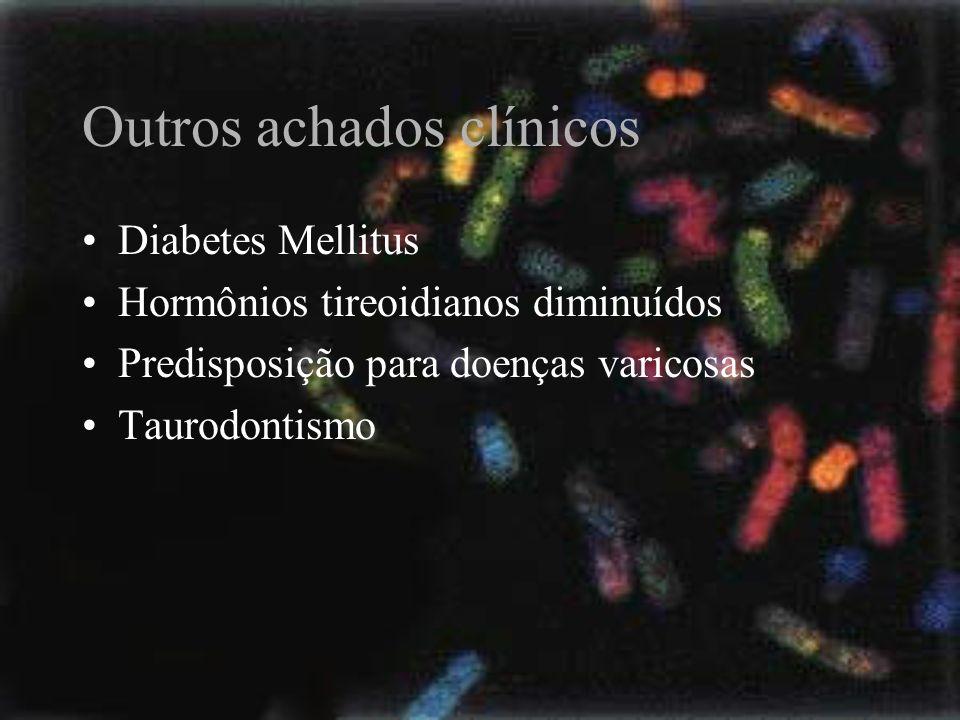 Outros achados clínicos Diabetes Mellitus Hormônios tireoidianos diminuídos Predisposição para doenças varicosas Taurodontismo