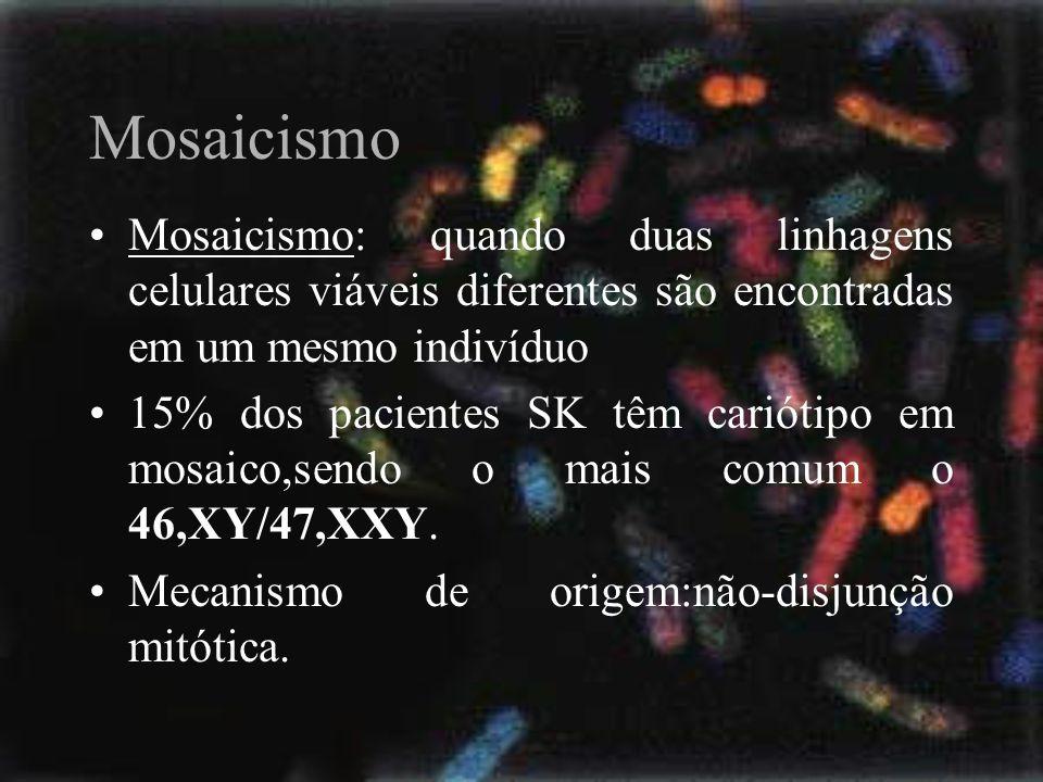 Mosaicismo Mosaicismo: quando duas linhagens celulares viáveis diferentes são encontradas em um mesmo indivíduo 15% dos pacientes SK têm cariótipo em