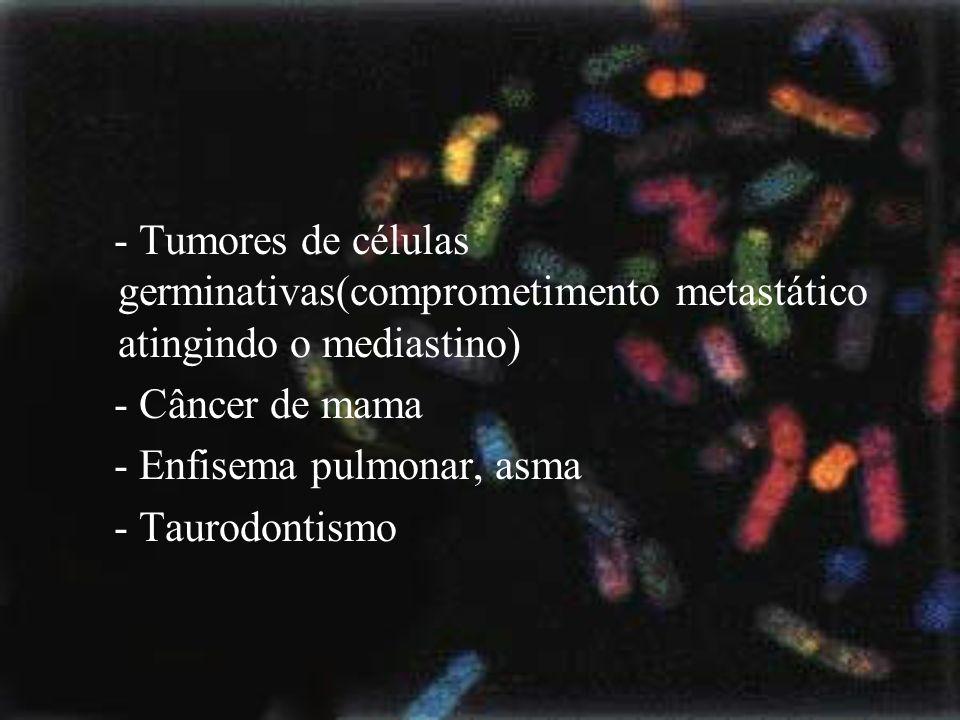 - Tumores de células germinativas(comprometimento metastático atingindo o mediastino) - Câncer de mama - Enfisema pulmonar, asma - Taurodontismo