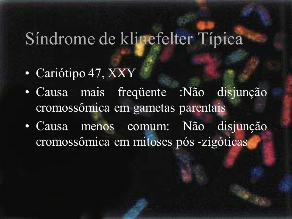 Síndrome de klinefelter Típica Cariótipo 47, XXY Causa mais freqüente :Não disjunção cromossômica em gametas parentais Causa menos comum: Não disjunçã