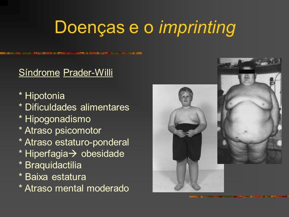 Síndrome Prader-Willi * Hipotonia * Dificuldades alimentares * Hipogonadismo * Atraso psicomotor * Atraso estaturo-ponderal * Hiperfagia obesidade * B