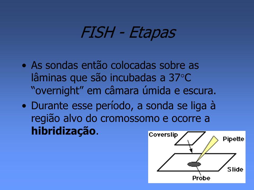 Câncer de Mama –FISH é utilizado para demonstrar a amplificação de genes.