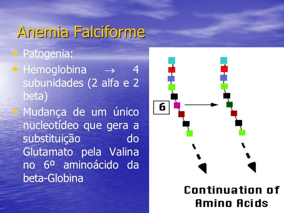 Patogenia: Hemoglobina 4 subunidades (2 alfa e 2 beta) Mudança de um único nucleotídeo que gera a substituição do Glutamato pela Valina no 6º aminoácido da beta-Globina Anemia Falciforme