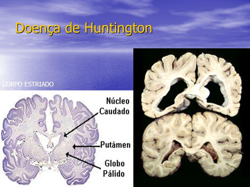 CORPO ESTRIADO Doença de Huntington
