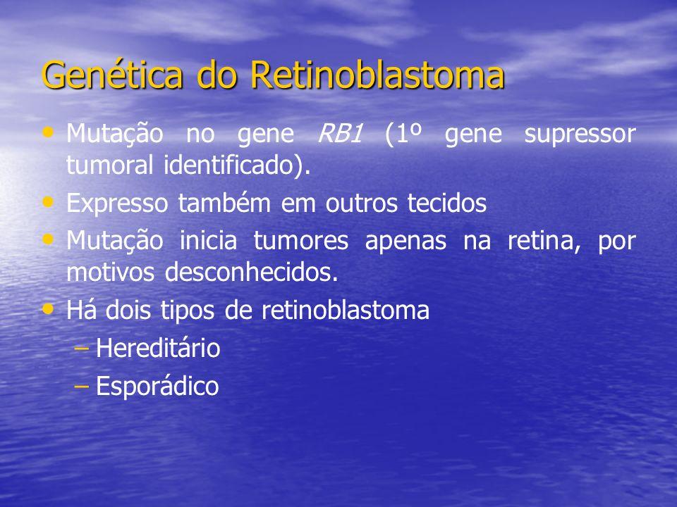 Mutação no gene RB1 (1º gene supressor tumoral identificado).