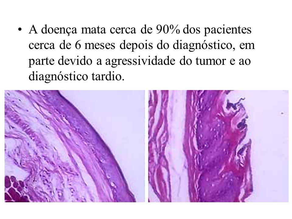 A doença mata cerca de 90% dos pacientes cerca de 6 meses depois do diagnóstico, em parte devido a agressividade do tumor e ao diagnóstico tardio.