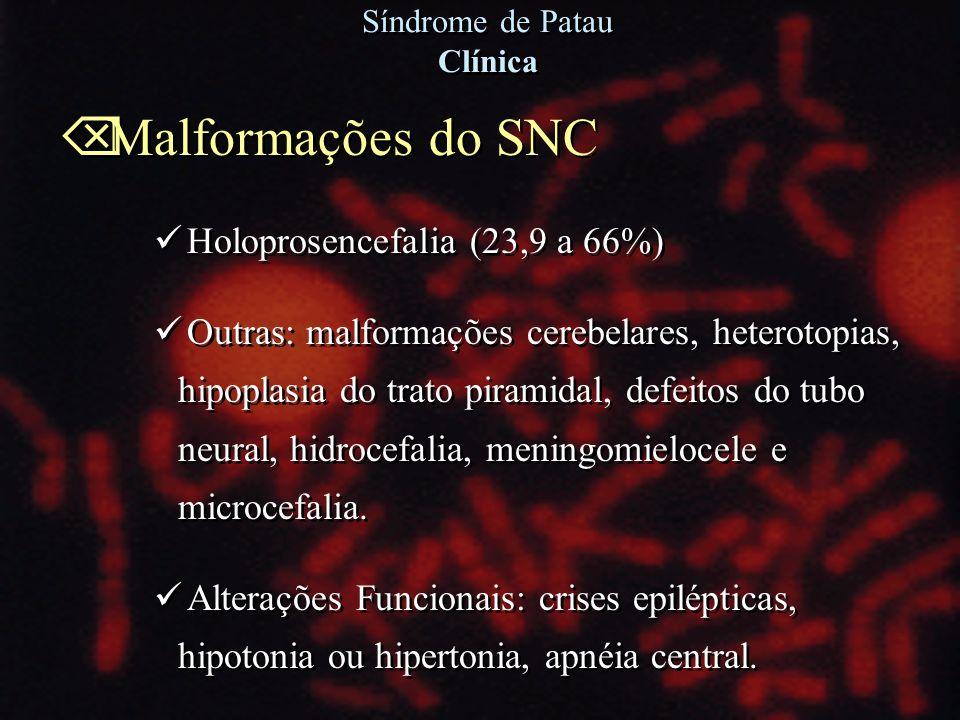 Õ Malformações do SNC Holoprosencefalia (23,9 a 66%) Outras: malformações cerebelares, heterotopias, hipoplasia do trato piramidal, defeitos do tubo n