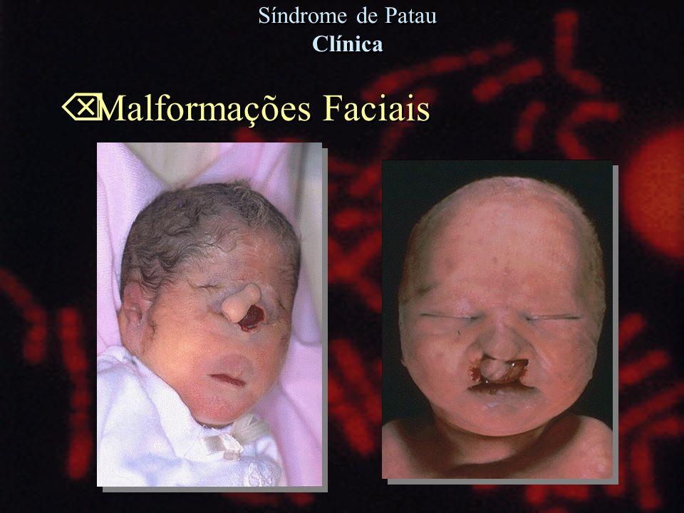 Õ Malformações Faciais Síndrome de Patau Clínica