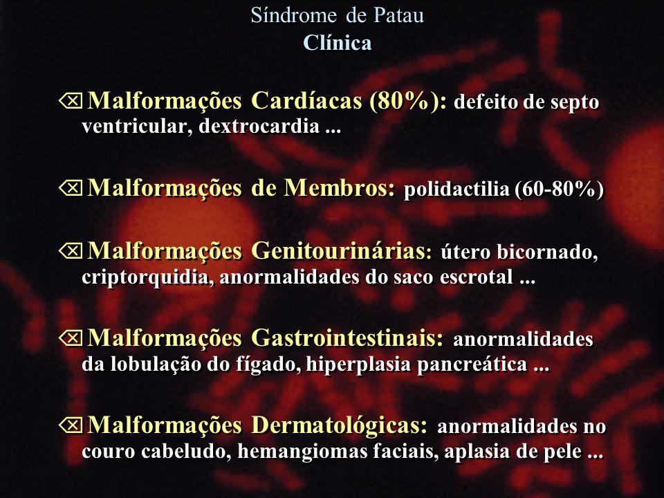 Õ Malformações Cardíacas (80%): defeito de septo ventricular, dextrocardia... Õ Malformações de Membros: polidactilia (60-80%) Õ Malformações Genitour