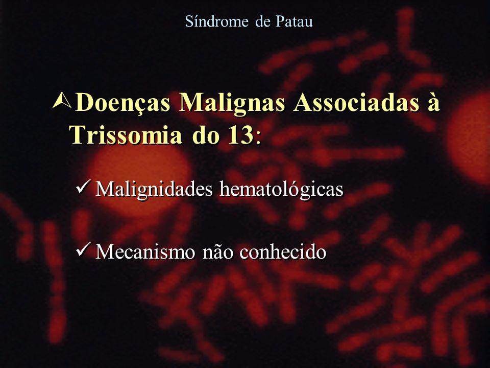 Ù Doenças Malignas Associadas à Trissomia do 13: Malignidades hematológicas Mecanismo não conhecido Ù Doenças Malignas Associadas à Trissomia do 13: M