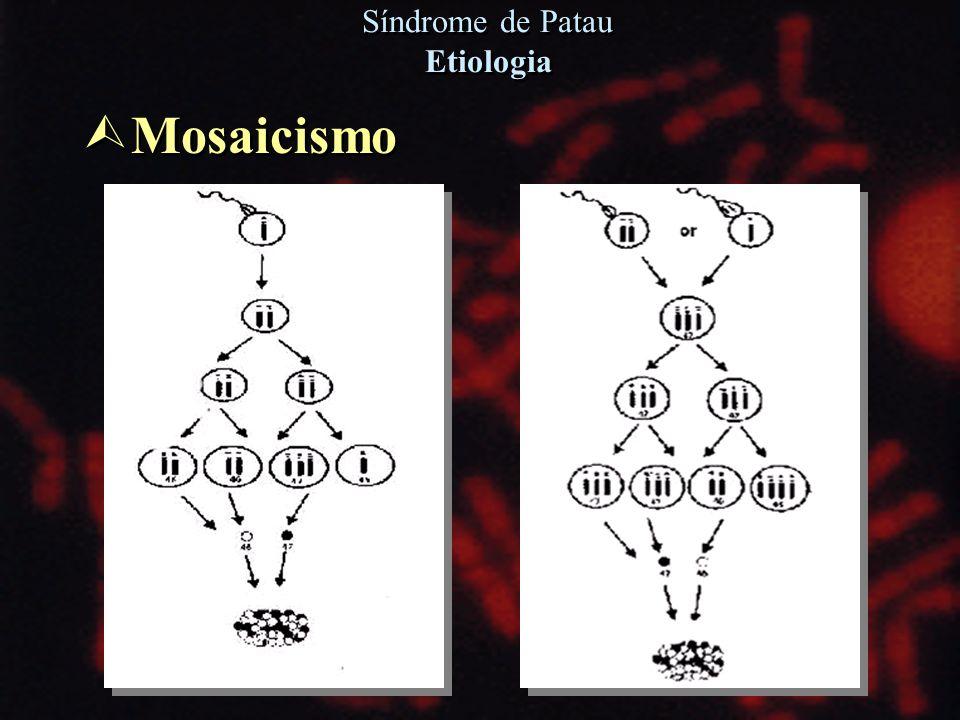 Ù Mosaicismo Síndrome de Patau Etiologia