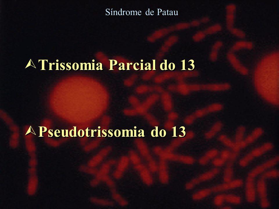 Ù Trissomia Parcial do 13 Ù Pseudotrissomia do 13 Ù Trissomia Parcial do 13 Ù Pseudotrissomia do 13 Síndrome de Patau