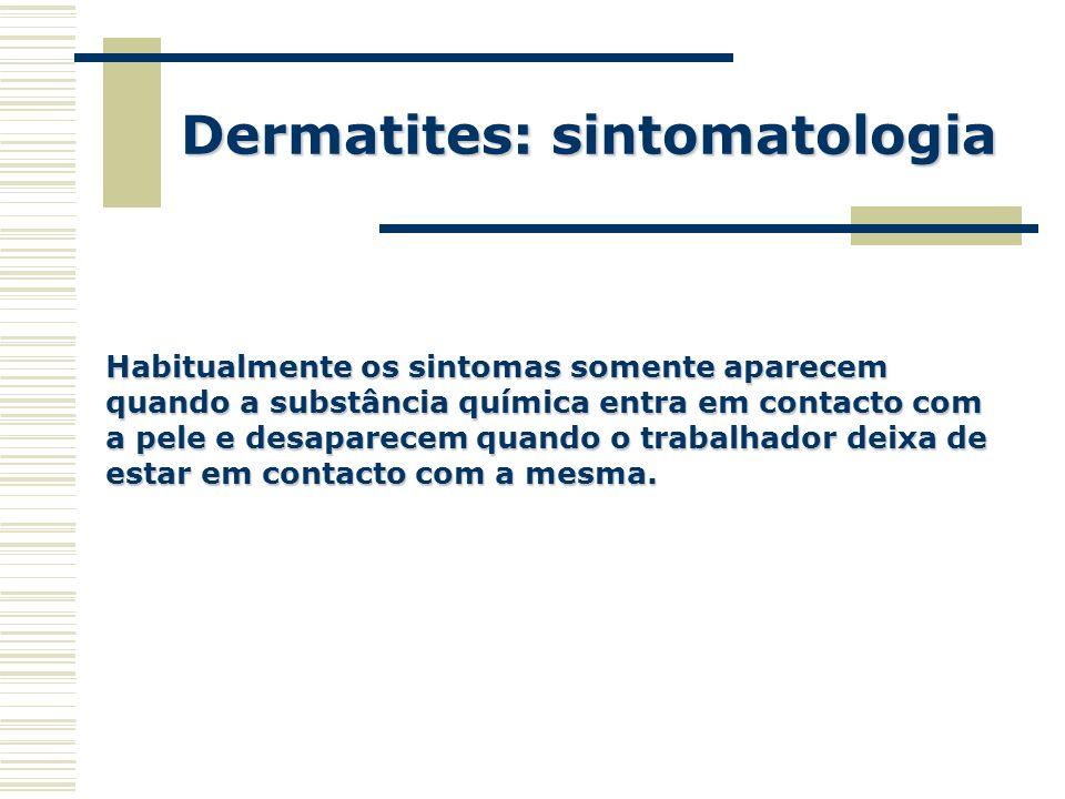 Dermatites: sintomatologia Habitualmente os sintomas somente aparecem quando a substância química entra em contacto com a pele e desaparecem quando o