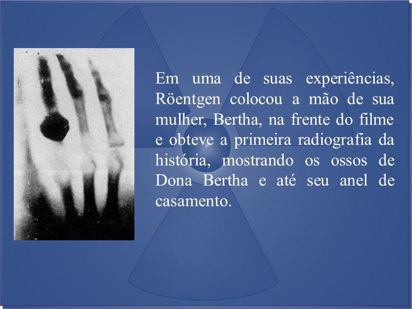 Em uma de suas experiências, Röentgen colocou a mão de sua mulher, Bertha, na frente do filme e obteve a primeira radiografia da história, mostrando o