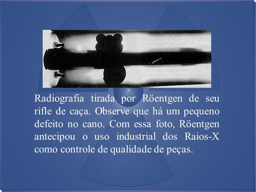 Radiografia tirada por Röentgen de seu rifle de caça. Observe que há um pequeno defeito no cano. Com essa foto, Röentgen antecipou o uso industrial do