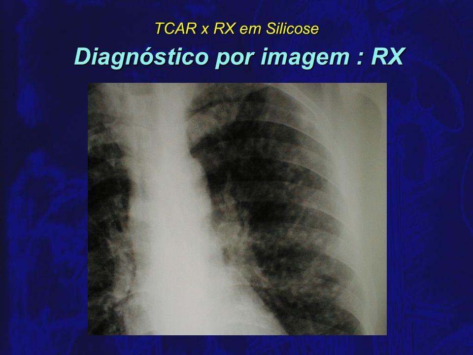 TCAR x RX em Silicose Sensibilidade do RX em Silicose comparado a autópsia n HNIZDO, 1993 África do Sul, autópsias de 557 ex-mineiros de 557 ex-mineiros RX 0/1 sensibilidade: 0,60 especificidade: 0,78 RX 0/1 sensibilidade: 0,60 especificidade: 0,78 RX 1/0 : 0,50 0,89 RX 1/0 : 0,50 0,89 n HURWITZ, 1959 África do Sul, autópsias de 700 ex-mineiros de 700 ex-mineiros RX lesões mínimas sens.: 0,66 espec.: 0,99 RX lesões mínimas sens.: 0,66 espec.: 0,99 RX lesões leves sens.: 0,46 espec.: 0,99 RX lesões leves sens.: 0,46 espec.: 0,99