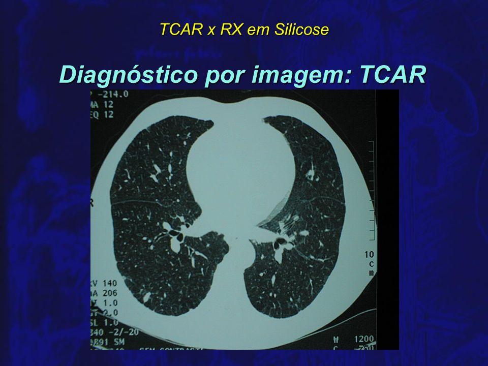TCAR x RX em Silicose Literatura TCAR x Anátomo-patológico em Silicose n OLIVETTI, 1993 42 expostos à sílica com RX categoria 0 ou 1 42 expostos à sílica com RX categoria 0 ou 1 35 com biópsia positiva para Silicose 35 com biópsia positiva para Silicose RX 0/1 sensibilidade = 57% RX 0/1 sensibilidade = 57% TCAR 0/1 sensibilidade = 86% TCAR 0/1 sensibilidade = 86% TCAR x anátomo-patológico em outras DPID TCAR x anátomo-patológico em outras DPID n PADLEY e cols.
