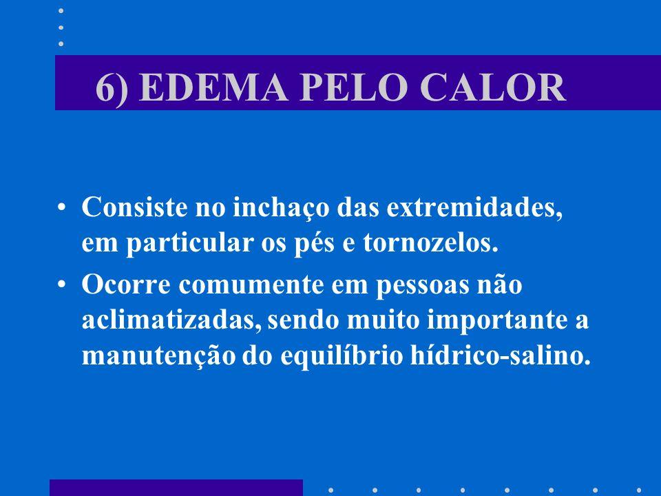 6) EDEMA PELO CALOR Consiste no inchaço das extremidades, em particular os pés e tornozelos. Ocorre comumente em pessoas não aclimatizadas, sendo muit